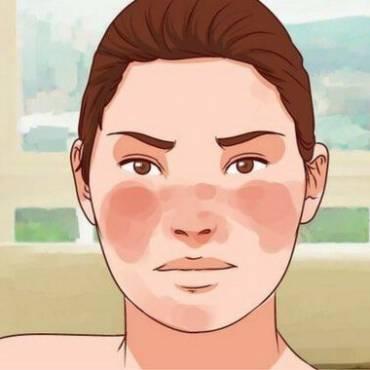 Controlar el lupus de forma natural