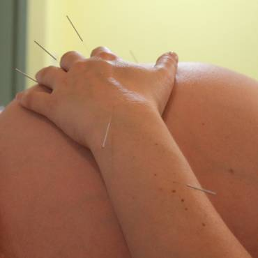 Acupuntura en el embarazo y el parto